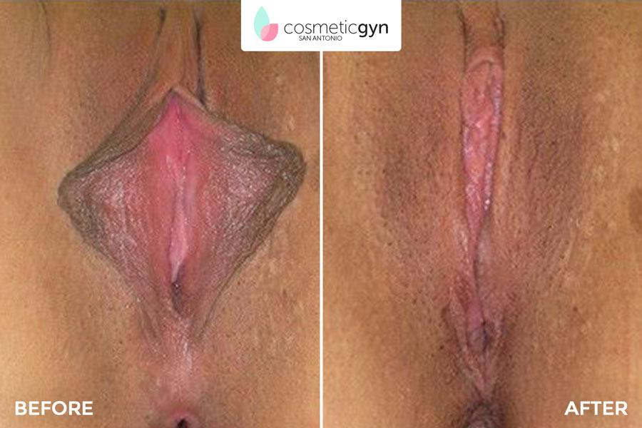 Ücretli show Clit reduction surgery pics cara