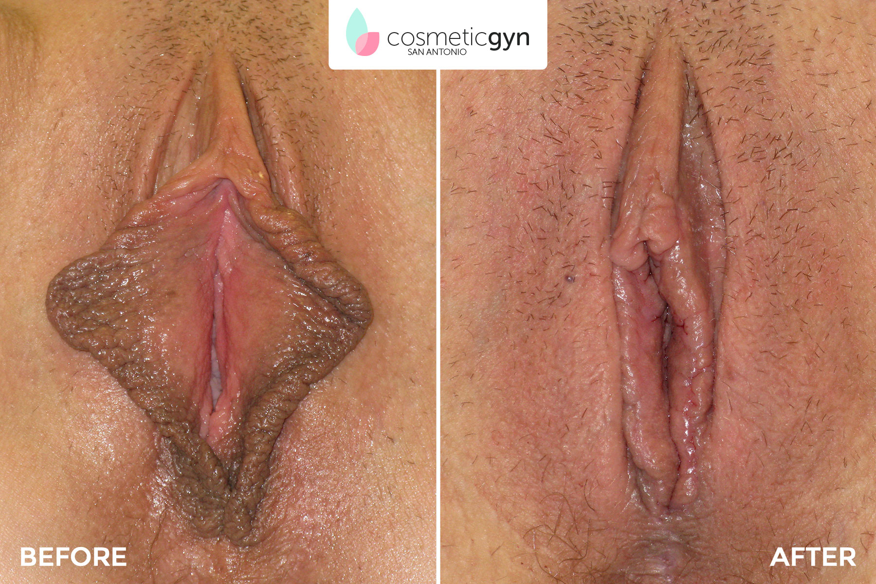 vaginal rejuvenation what is