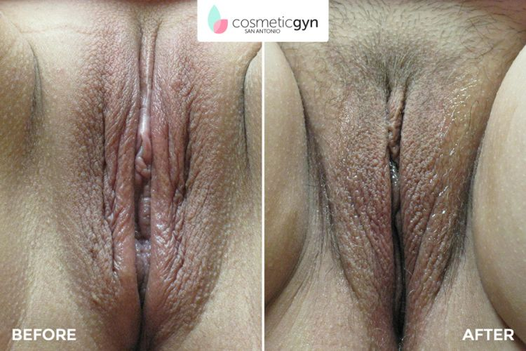 Rejuvenecimiento vaginal san antonio texas dr hailparn