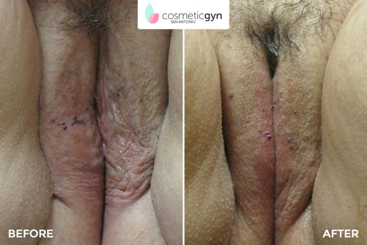 Labiaplasty Labia Surgery Before and After Photos by