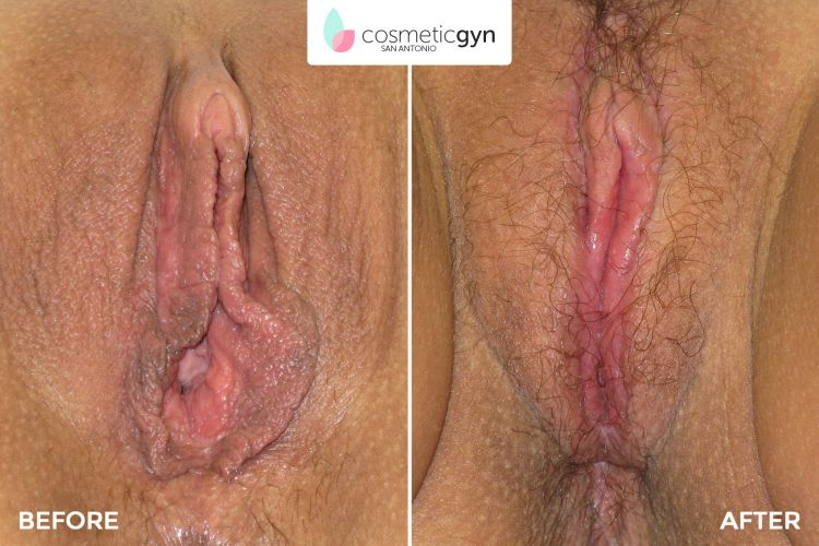 Beverly Hills Laser Vaginal Rejuvenation® Before and After ...