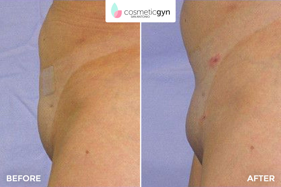 Mons Pubis Liposuction Before And After Pictures Cosmeticgyn San Antonio